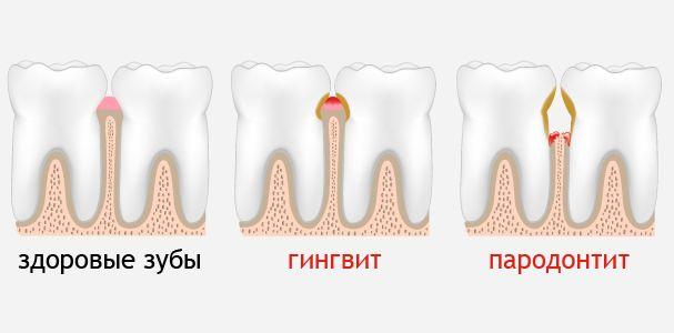 Gingvit-i-parodontit