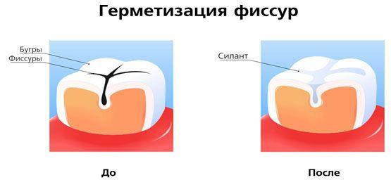 prophylactic