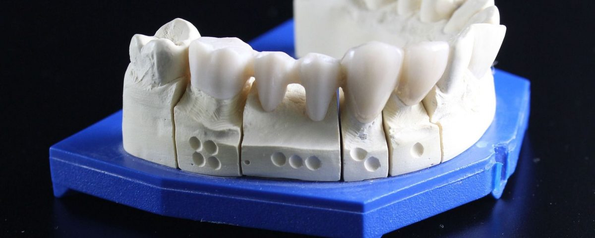 tooth-replacement-759928_1920