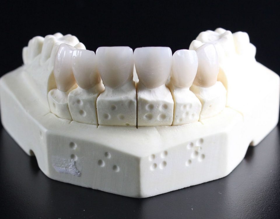 tooth-replacement-759929_1920